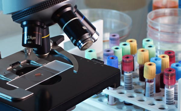 How automation can help your laboratory perform better